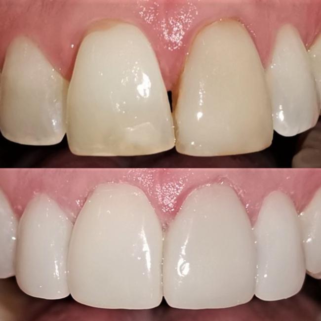 Sbiancamento denti professionale prima e dopo