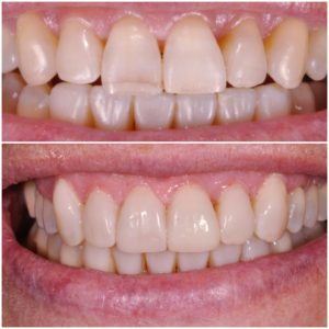 Prima e dopo ricostruzione denti Roma
