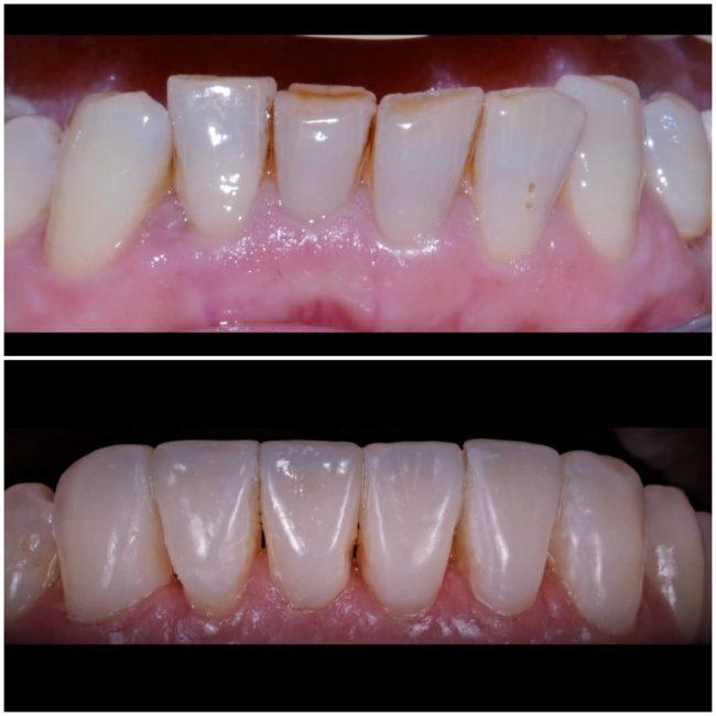 ripristino della bocca, terapia ortodontica di allineamento, impianti dentali, ricostruzione estetica