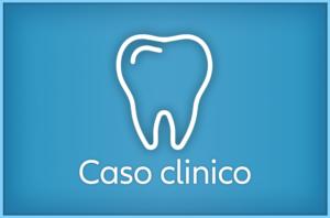 Ricostruzione estetica denti: incisivi centrali