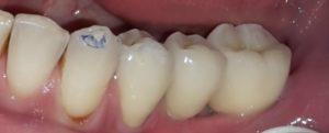 intraorale denti