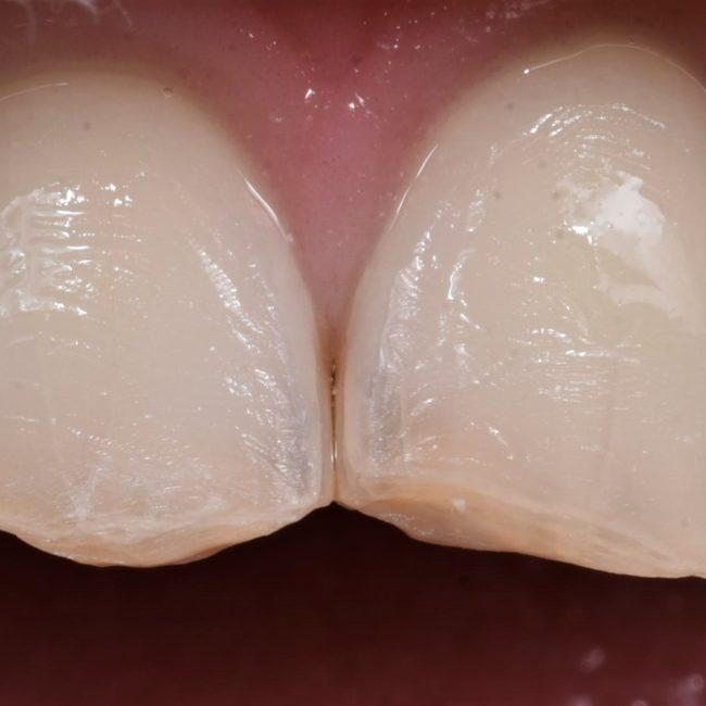 Preparazione intervento dentista Roma