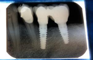 Radiografia impianti denti molari Roma